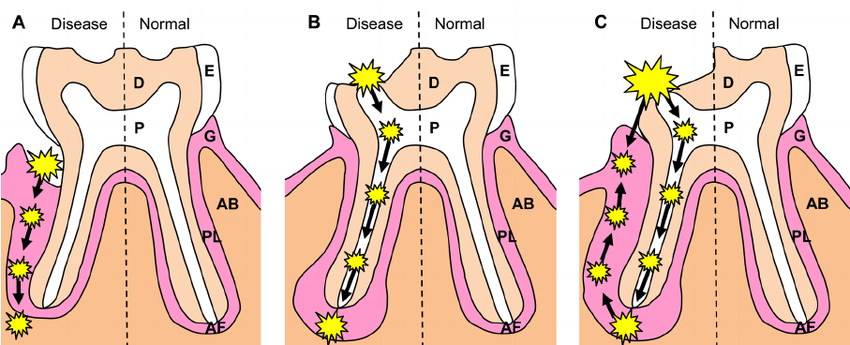 Diagrammatic-representation-of-the-possible-pathogenesis-of-periodontal-lesions-A.png
