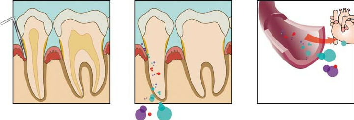 Model-of-pathogenesis-of-periodontitis-ischaemic-cardiovascular-diseases-Bacteria